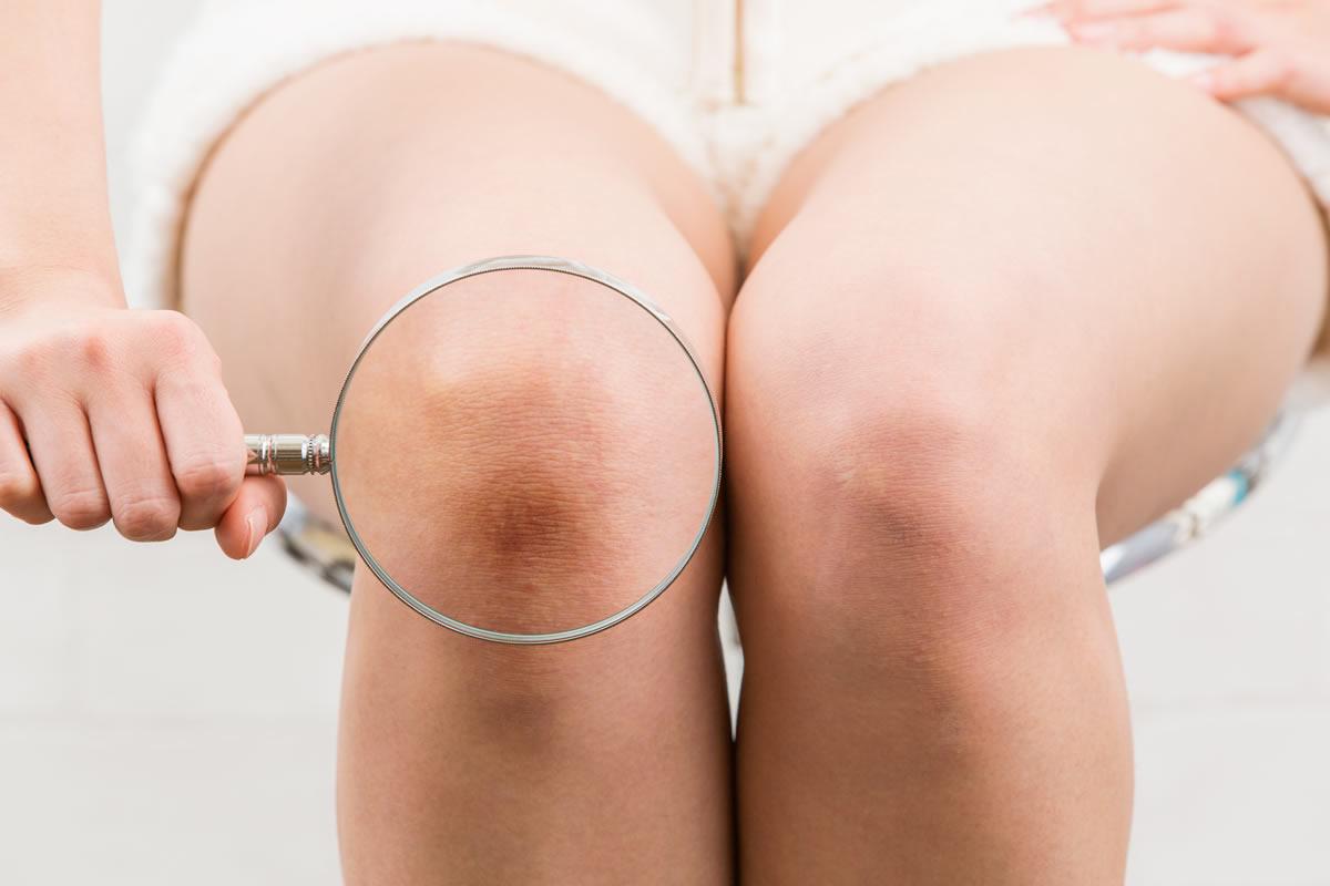 Observa las rodillas mejores cuidados para embellecer las rodillas