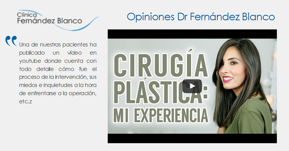 Paciente opina sobre el doctor Fernández Blanco tras realizarse una rinoplastia